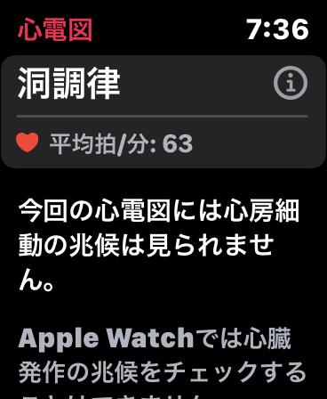 まるで狙い撃ち(笑)。。。Apple Watch Series6-07